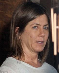 """Jennifer Aniston caracterizada para su nueva película """"Cake"""""""